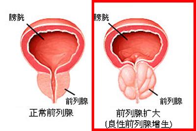 前列腺肥大能引起睾丸疼痛