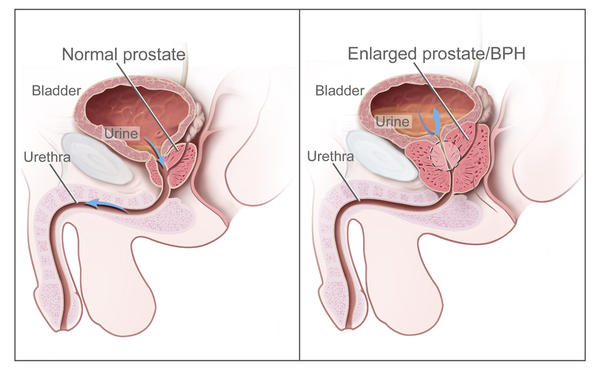 Painful Ejaculation Caused By Prostatitis Can Be Cured By Diuretic ...