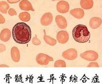 支原体感染的症状_骨髓增生异常综合征类型不同 危险程度也不同(上)-慢性病健康 ...